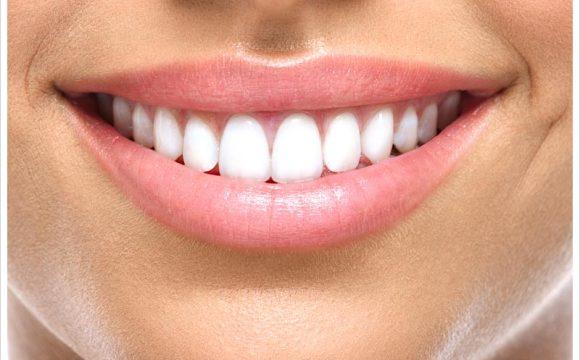 Diş Beyazlatma Hakkında
