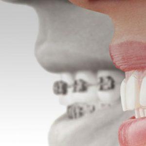 Ortodontik tedavi sonrası dişlerde çarpışıklık tekrar görülür mü?