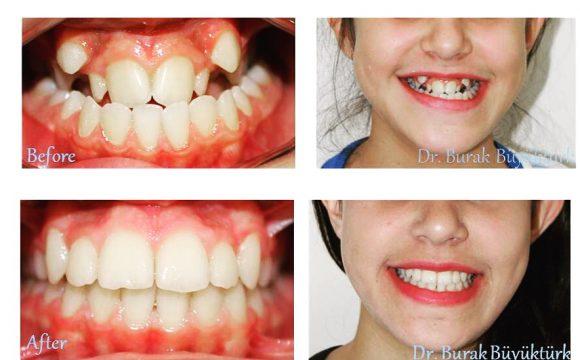 Çocuklar İçin Diş Teli Kullanımın Gerekliliği Nasıl Anlaşılır?