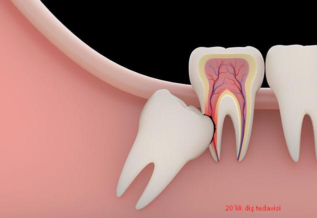 20'lik Diş Ağrısı Nasıl Geçer?