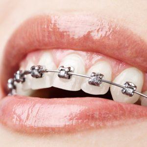 Telsiz Diş Tedavisi (Ortodonti) için En Uygun Yaş