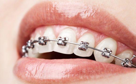 Diş Teli Tedavisi Hakkında Herşey