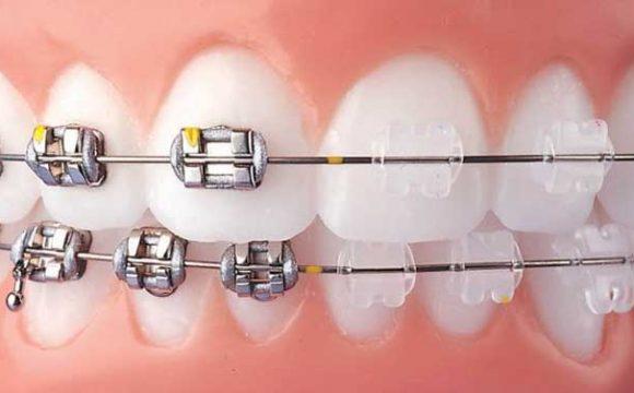 Diş Teli Hakkında