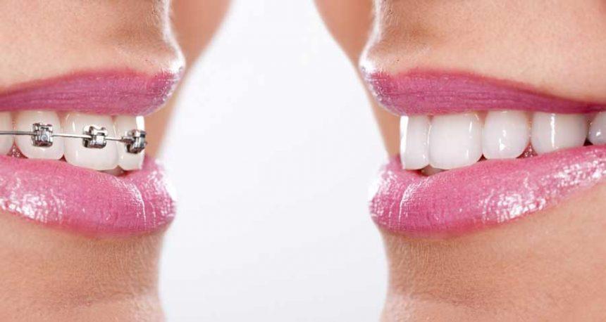 Ortodonti Süreci