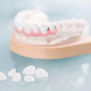 Diş Kaplama Fiyatları