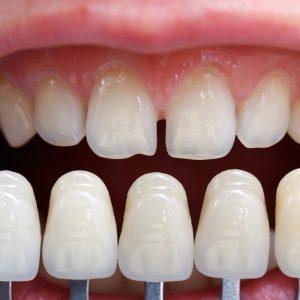 2018 Porselen Diş Fiyatları